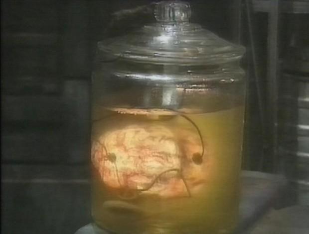 Lister's Brain